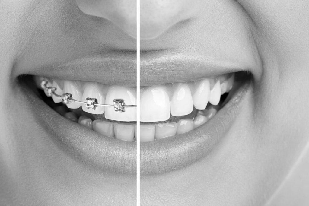 Leistungen-dr-schwarz-zahnspange